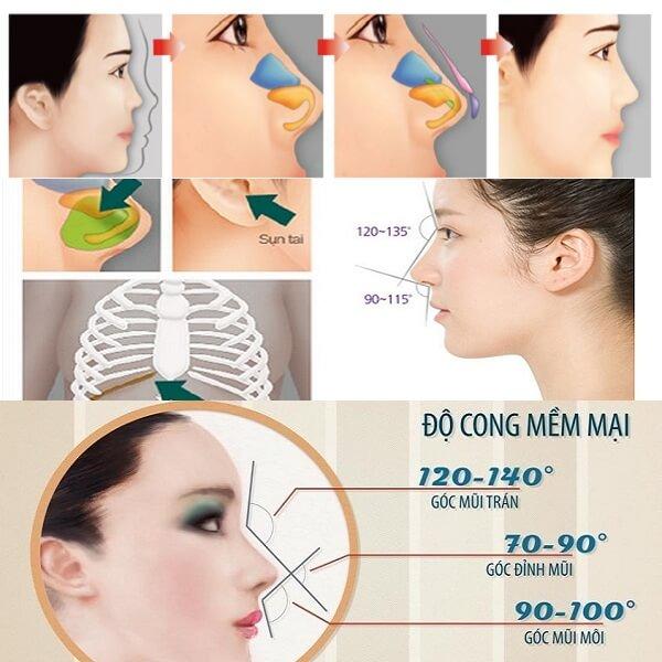 Nâng mũi bằng sụn tự thân được bao lâu - hình 2