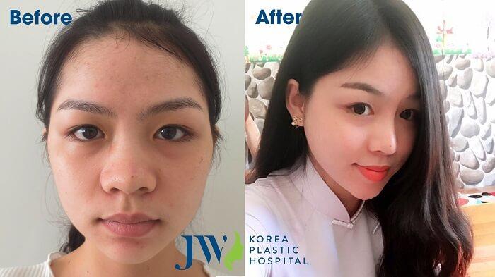 Làm thế nào khi bị dị ứng chất liệu nâng mũi - hinh 6