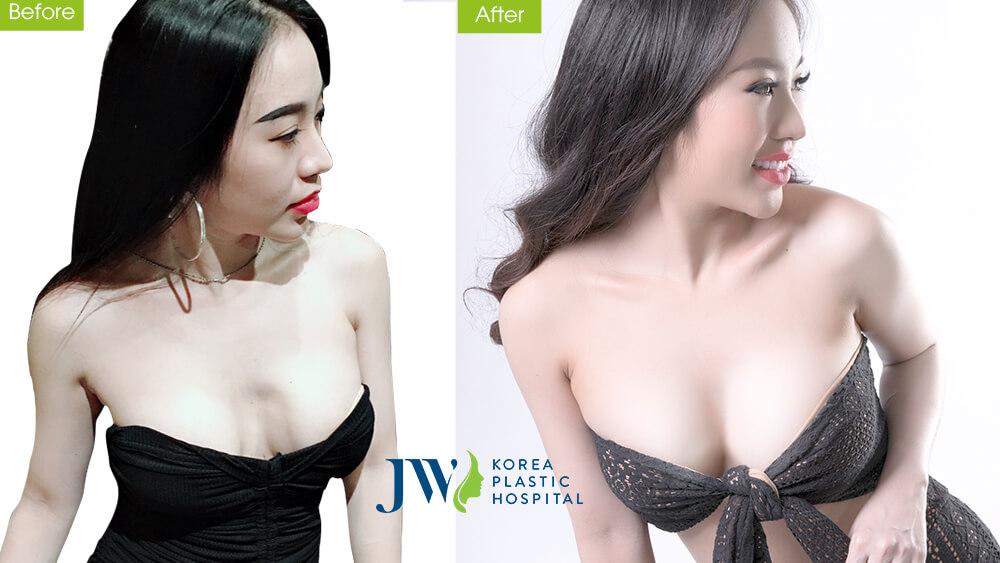 Nâng ngực nội soi qua đường rốn có tốt không - hình 7