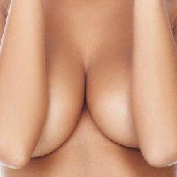Phẫu thuật nâng ngực chảy xệ sau sinh giá bao nhiêu?
