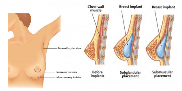 Có nên nâng ngực nội soi qua đường nách không - hình 2