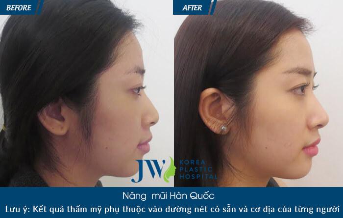 Tại sao nên nâng mũi sụn mềm Hàn Quốc-hình 8