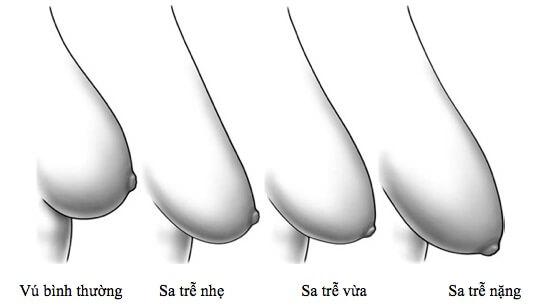 Phẫu thuật nâng ngực chảy xệ sau sinh giá bao nhiêu-hình 2