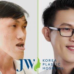 Phẫu thuật cắt xương hàm giá bao nhiêu tiền? Bảng giá phẫu thuật hàm mặt mới nhất 2019