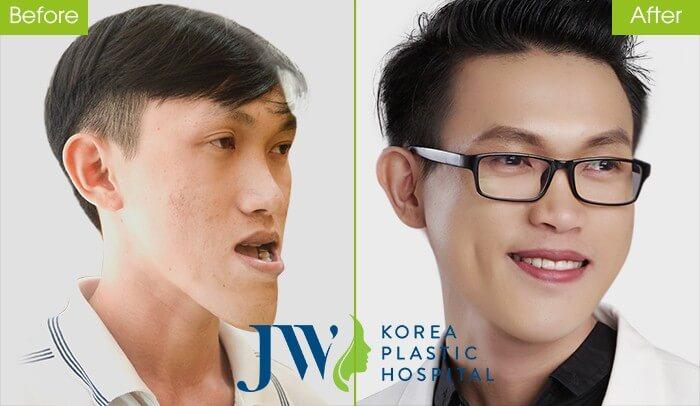 Phách hàng phẫu thuật cắt xương hàm ho móm thành công tại JW