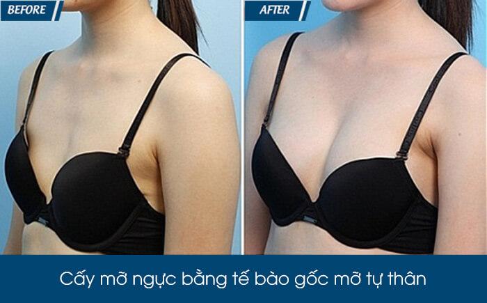 Nâng ngực bằng mỡ tự thân có bền không - hình 5