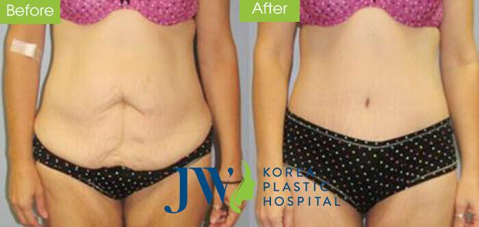 Căng da bụng có đau không – Những điều cần biết về phương pháp này - hình 6