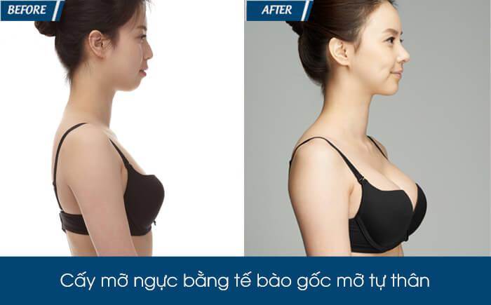 Nâng ngực bằng mỡ tự thân có bền không - hình 6
