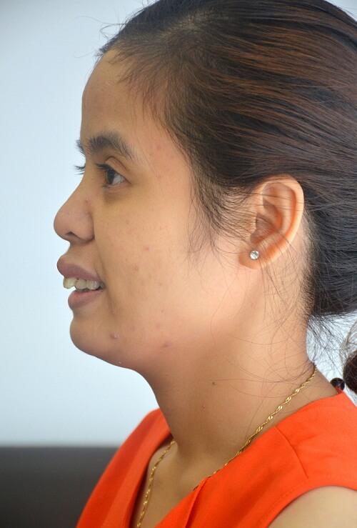 Một trường hợp hô hàm trên do xương