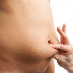 Hỏi đáp cùng chuyên gia về căng da bụng sau sinh