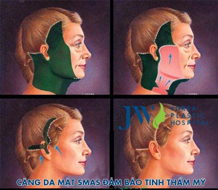 Căng da mặt có nguy hiểm không -hình 2