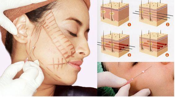 Căng da mặt được bao lâu - hình 1