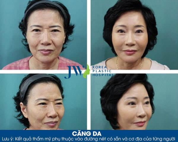 Căng da mặt được bao lâu - hình 4