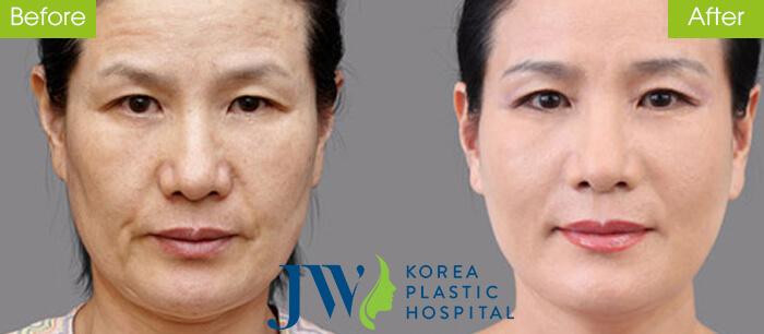 Căng da mặt có nguy hiểm không -hình 5