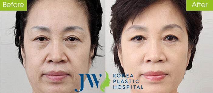 Căng da mặt có nguy hiểm không -hình 6