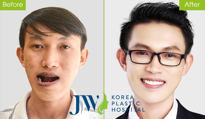 Thạc sĩ xe ôm Duy Phương từng mặc cảm về gương mặt lệch, hàm móm nặng đã được JW hỗ trợ phẫu thuật thành công. Sau khi phẫu thuật, Duy Phương đã có công việc ổn định, chàng trai nghèo viết tiếp ước mơ tươi sáng cho mình