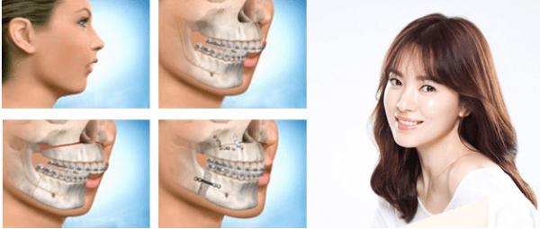 Giải pháp chữa hàm hô một lần duy nhất không cần niềng răng.