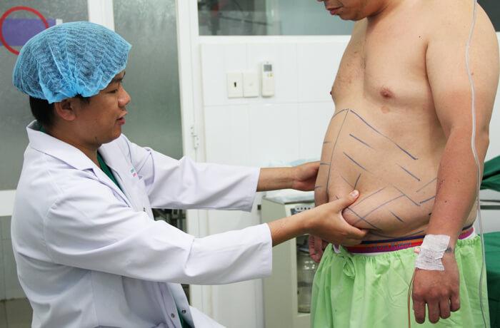 Bảng giá giảm mỡ bụng trọn gói tại bệnh viện thẩm mỹ uy tín_2