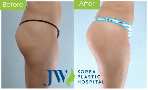 Hình ảnh khác biệt trước và sau khi nâng mông nội soi