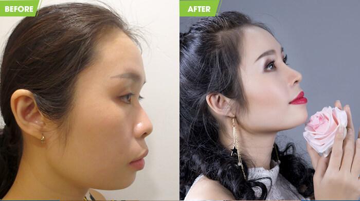 Diễn viên Việt Trang trước và sau khi sửa mũi