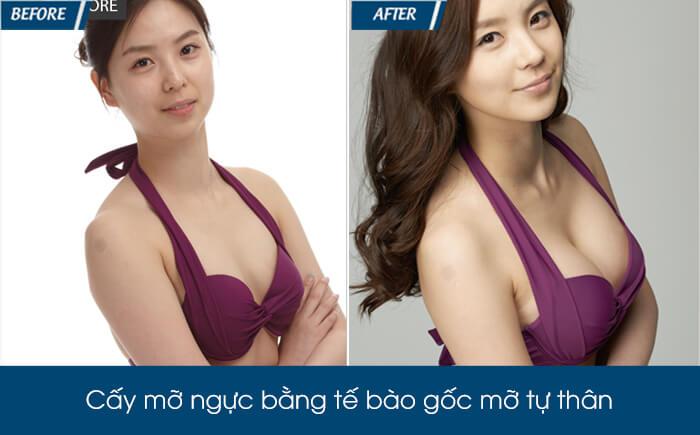 Nâng ngực bằng mỡ tự thân có tốt không - hình 5