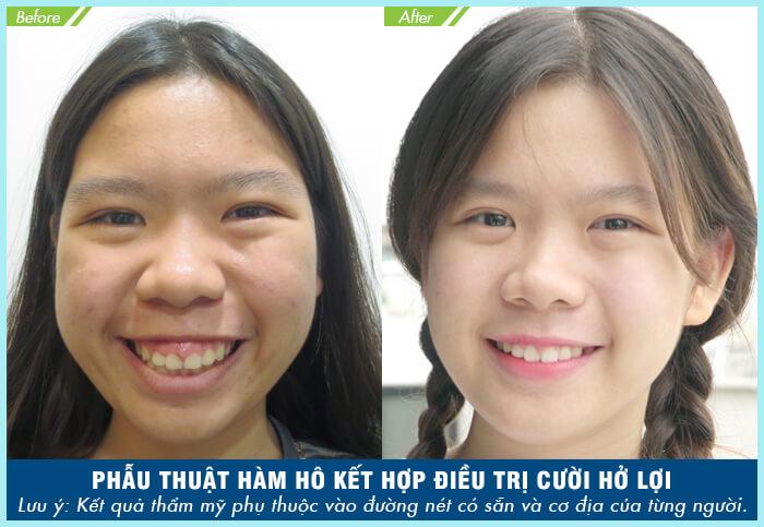 Phẫu thuật cắt xương hàm có nguy hiểm không - hình 4