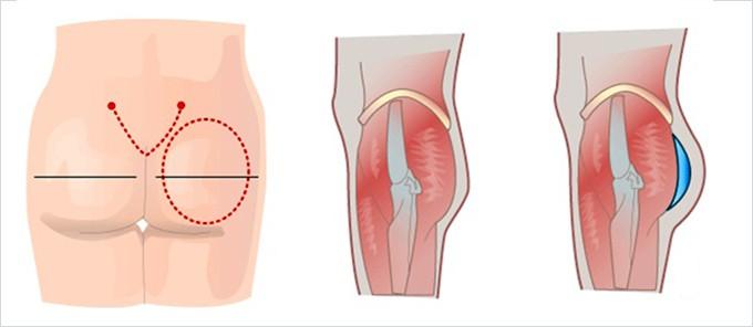 Nâng mông nội soi có nguy hiểm không? Giải đáp của chuyên gia_2