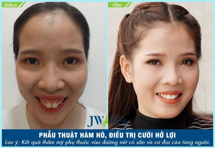 Phẫu thuật cắt xương hàm có nguy hiểm không - hình 6
