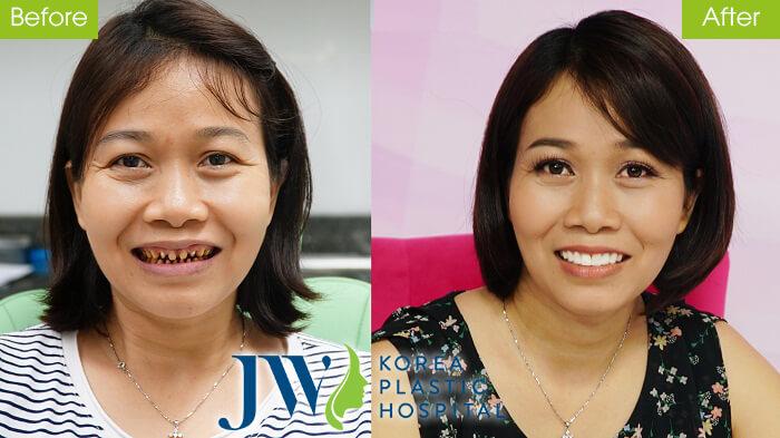 Chị Đoàn Thị Nguyện đươc giải cứu hàm răng từng bị mài hỏng toàn bộ