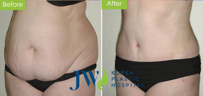 Top 5 cách trị bụng chảy xệ và chùn nhão sau sinh hiệu quả- hình 6