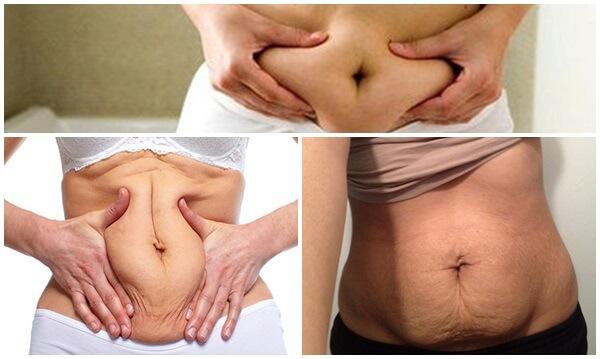 Giải pháp khắc phục da bụng chùn nhão sau sinh - hình 2