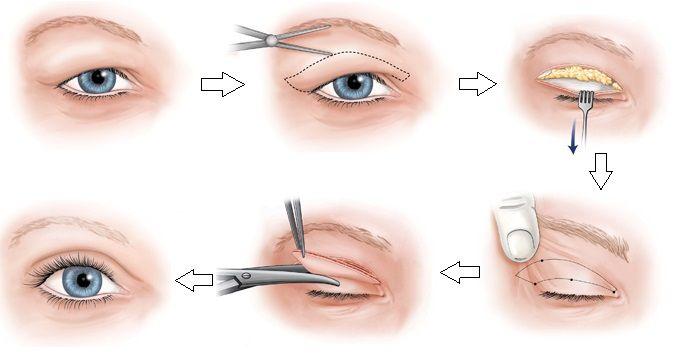 Cắt da thừa mí mắt có nguy hiểm không - hình 2