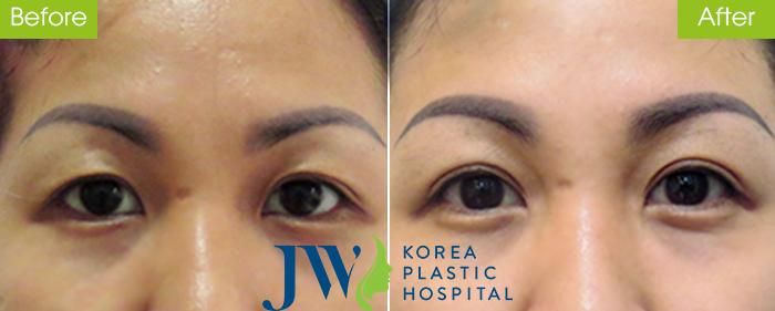 Lấy mỡ mí mắt có nguy hiểm không? Có đau nhiều hay không - hình 8