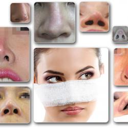 Nguyên nhân và cách xử lý khi nâng mũi bị hở sụn