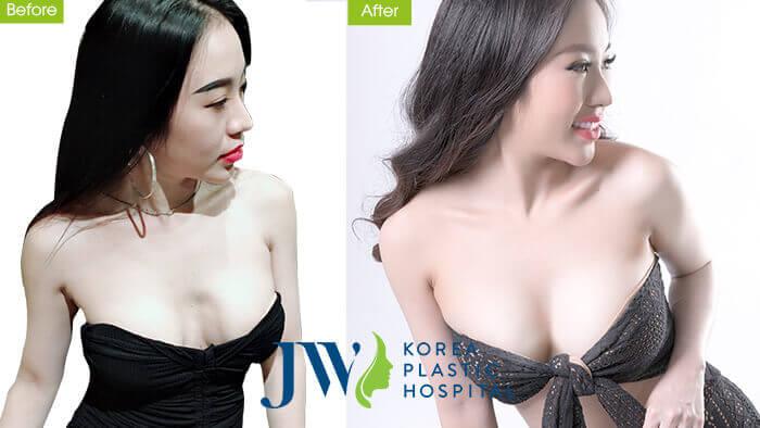 DJ Nhung Babie tự tin khoe vòng 1 quyến rũ nhờ nâng ngực Nano chip giọt nước 4.0