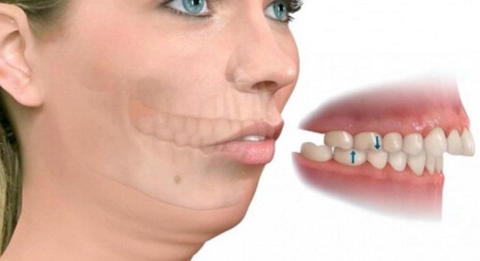 Hô hàm cần phải can thiệp phẫu thuật 1 lần duy nhất mới mong mang lại hiệu quả.