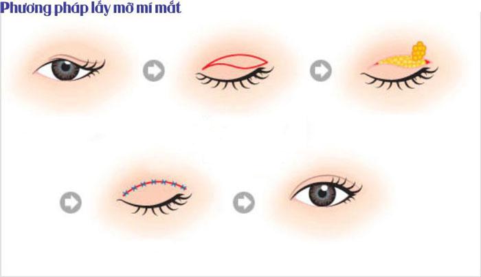 Lấy mỡ mí mắt có nguy hiểm không? Có đau nhiều hay không - hình 2
