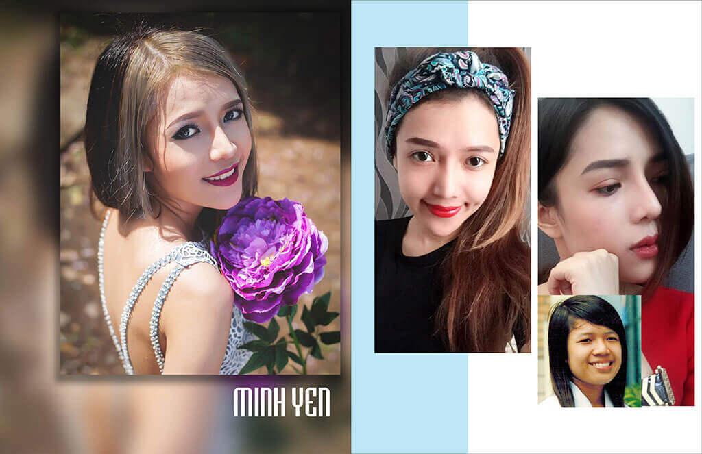 chuyen-gia-tham-my-boc-phot-su-that-ve-nang-mui-s-line-3d-9