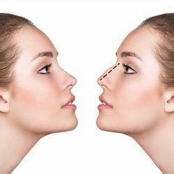 Nguyên nhân nâng mũi bị biến chứng và giải pháp khắc phục an toàn
