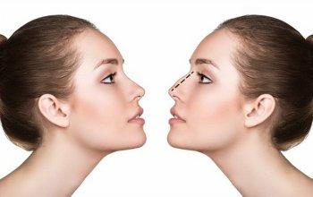 nâng mũi bị biến chứng