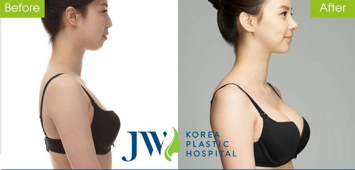 Khách hàng sở hữu bầu ngực căng tròn, quyến rũ sau nâng ngực an toàn.
