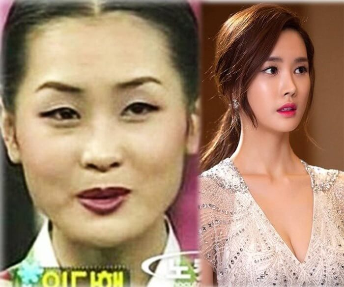 """Top 5 """"đệ nhất mỹ nhân dao kéo"""" thành công nhất Hàn Quốc_4"""
