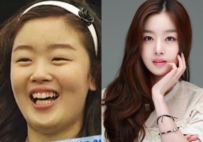 """Top 5 """"đệ nhất mỹ nhân dao kéo"""" thành công nhất Hàn Quốc_6"""