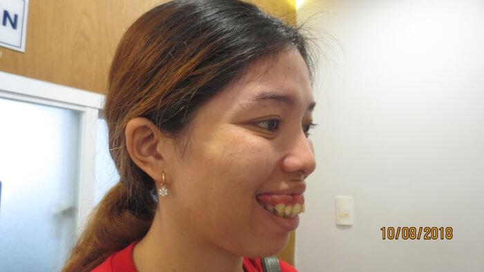 Tố Uyên bị hàm hô và cười hở lợi rất nhiều - Phẫu thuật hàm móm