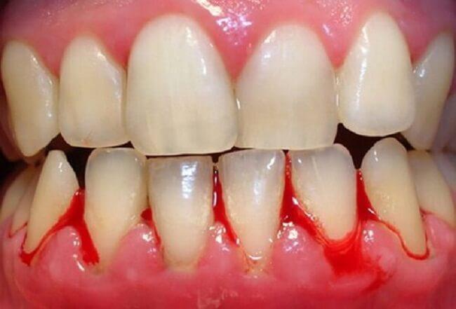 Viêm nha chu nặng không nên can thiệp niềng răng.