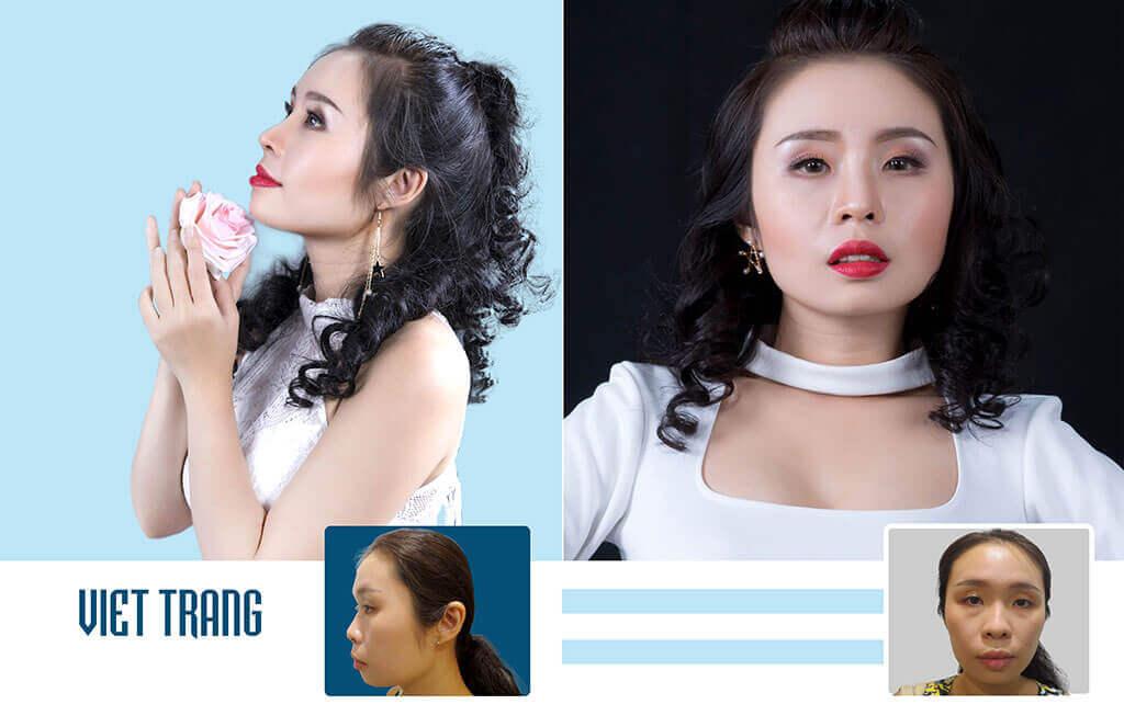 chuyen-gia-tham-my-boc-phot-su-that-ve-nang-mui-s-line-3d-5