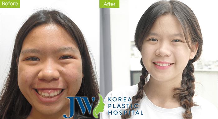 Khách hàng Trà My (17 tuổi, Đà Nẵng) trước và sau khi phẫu thuật hàm hô.
