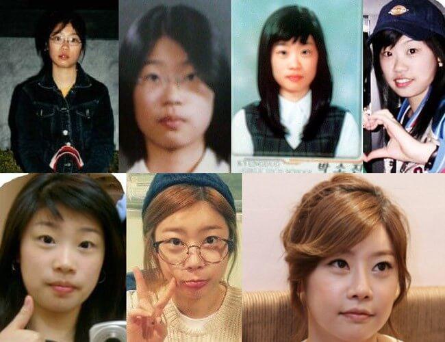 Sau phẫu thuật thẩm mỹ, cô nàng trưởng nhóm Girl' day ngày càng trẻ trung và xinh đẹp dù ở độ tuổi 32.