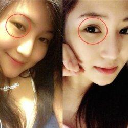 Cắt mí mắt có ảnh hưởng gì đến tướng số không?