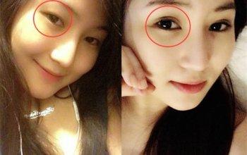 cắt mí mắt có ảnh hưởng gì đến tướng số không